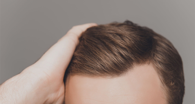 How To Handle Hair Transplant Scars