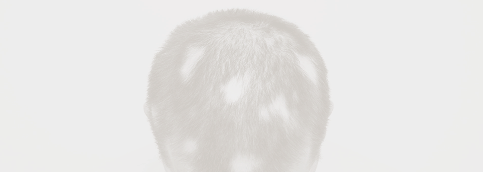 alopecia areata malta